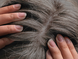 70% Grey Hair